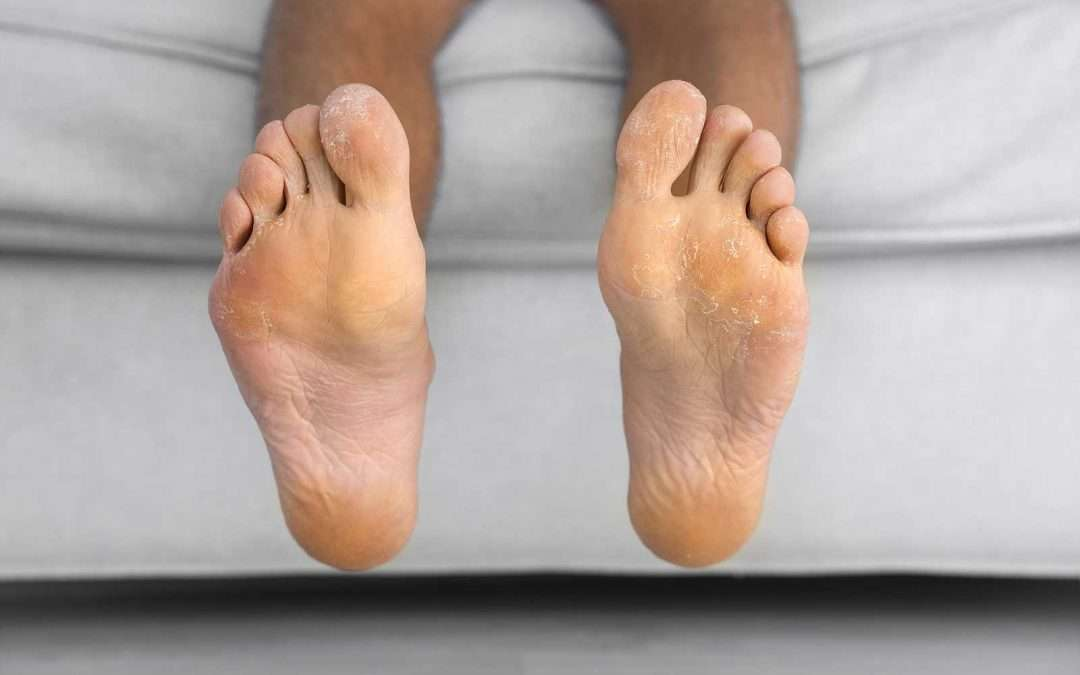 Safety Tips for Foot Neuropathy